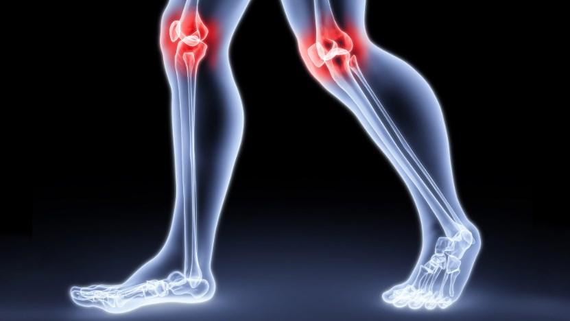 Рентген колінного суглоба