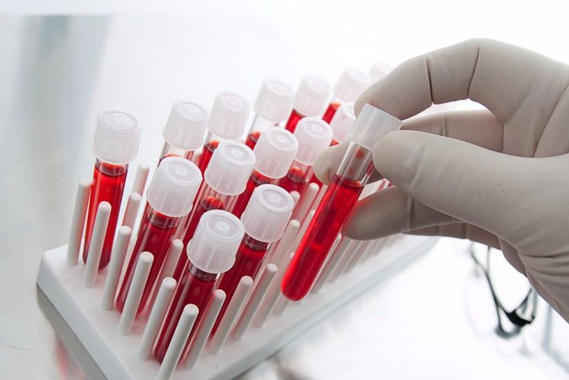 Аналіз крові на черевний тиф