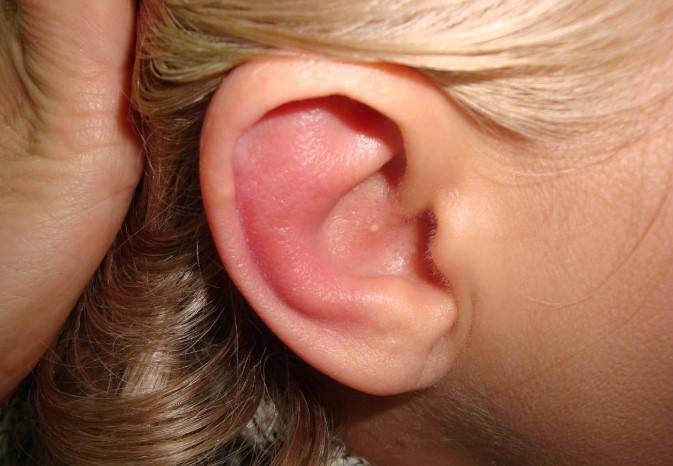 Запалення зовнішнього вуха