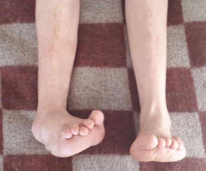Артроз гомілковостопного суглоба з варусной деформацією