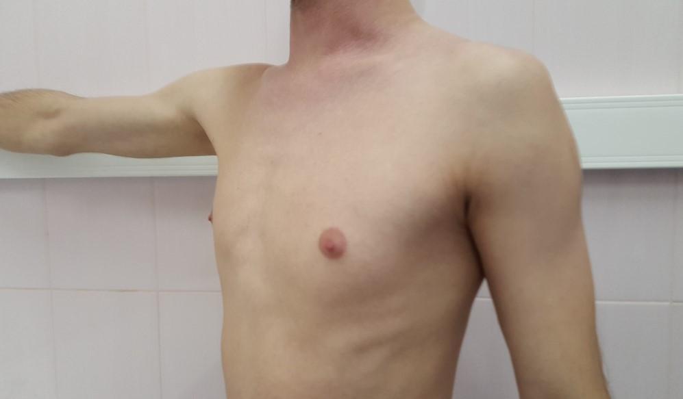 Одностороння гінекомастія у чоловіків