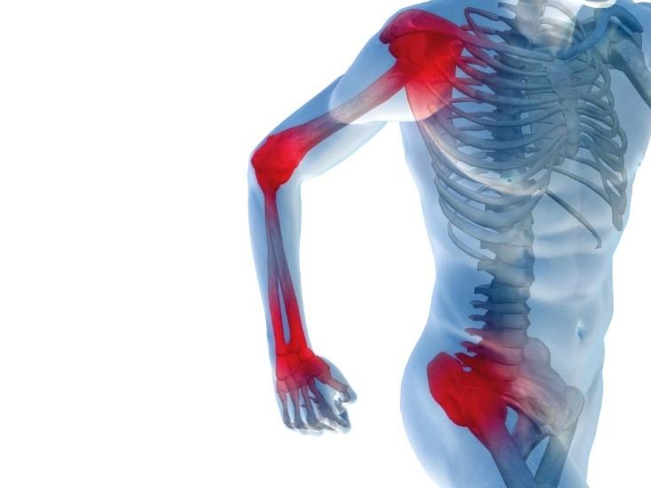 Артралгія: причини, симптоми