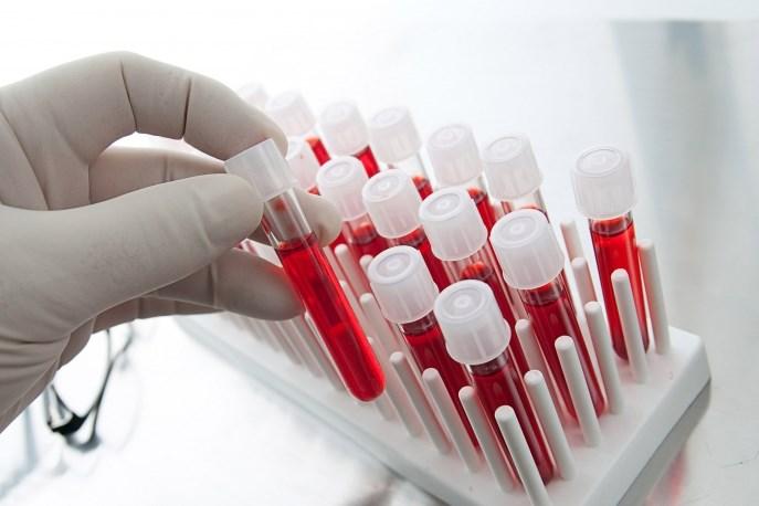 Шляхи передачі ВІЛ-інфекції