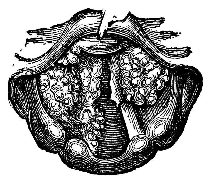 Папіломатоз гортані
