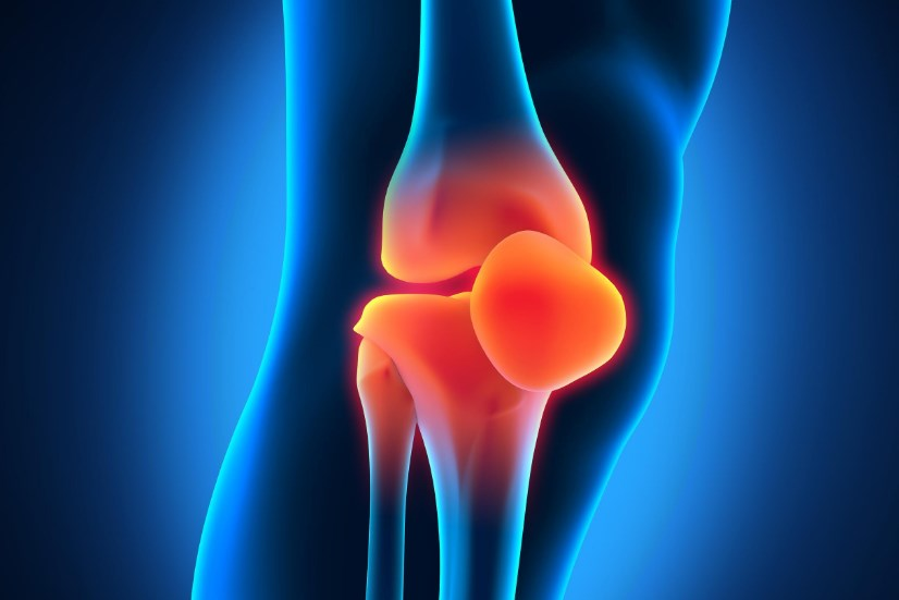 Хвороба Осгуда-Шляттера колінного суглоба