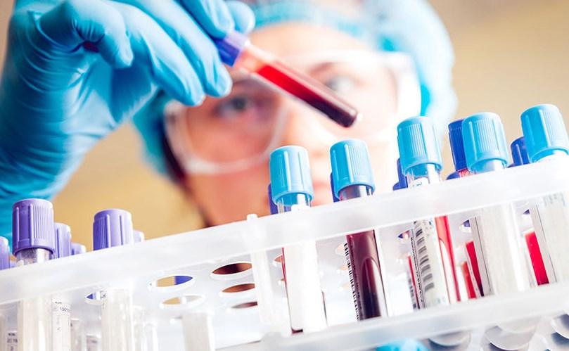 Чи можна заразитися ВІЛ при поцілунку?