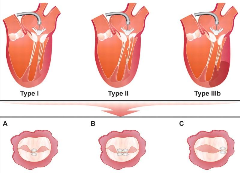 Типи недостатності мітрального клапана