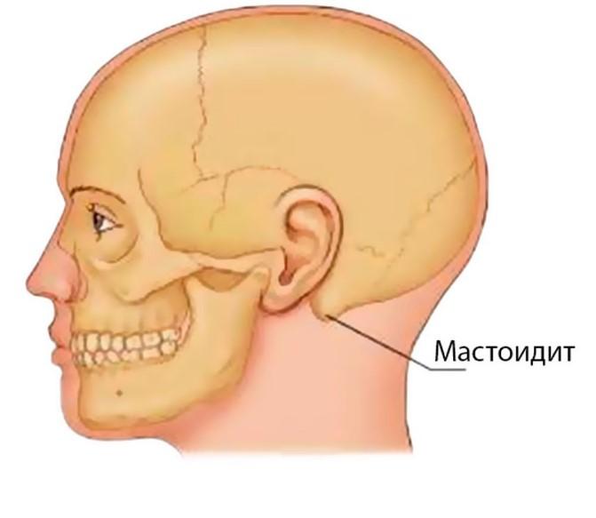 Мастоідит - причини, симптоми