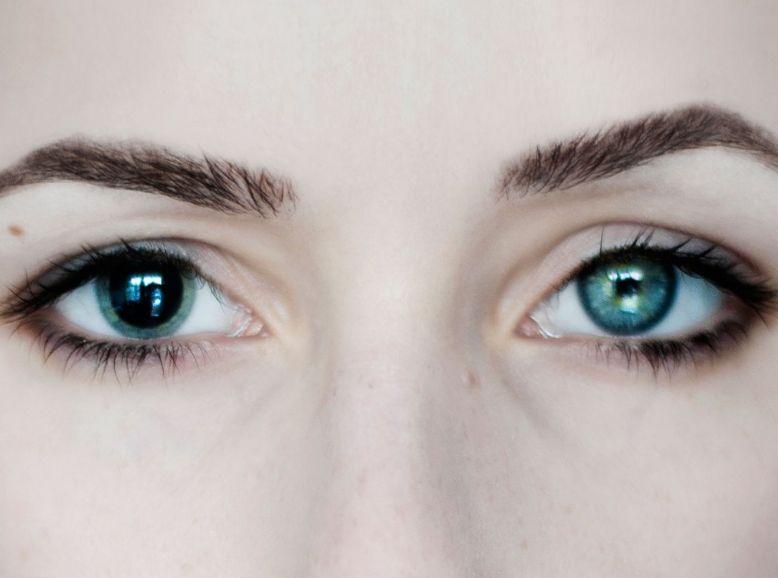 Анізокорія - асиметрія зіниць