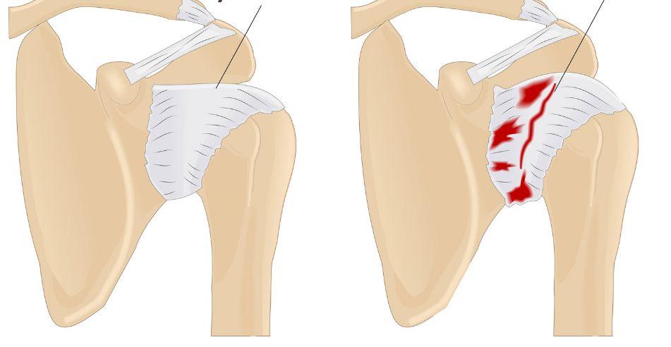 Артроз плечового суглоба: як вчасно розпізнати
