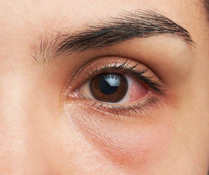 Кератит: симптоми і лікування
