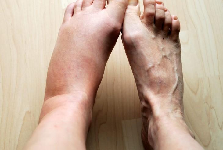 Основні симптоми ревматоїдного артриту гомілковостопного суглоба