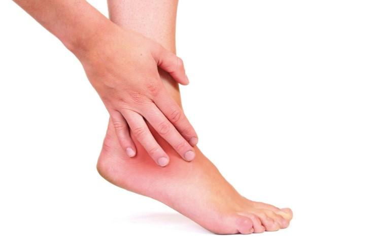 Артрозо-артрит гомілковостопного суглоба