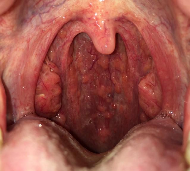 Тонзиліт і фарингіт: в чому відмінності захворювань?