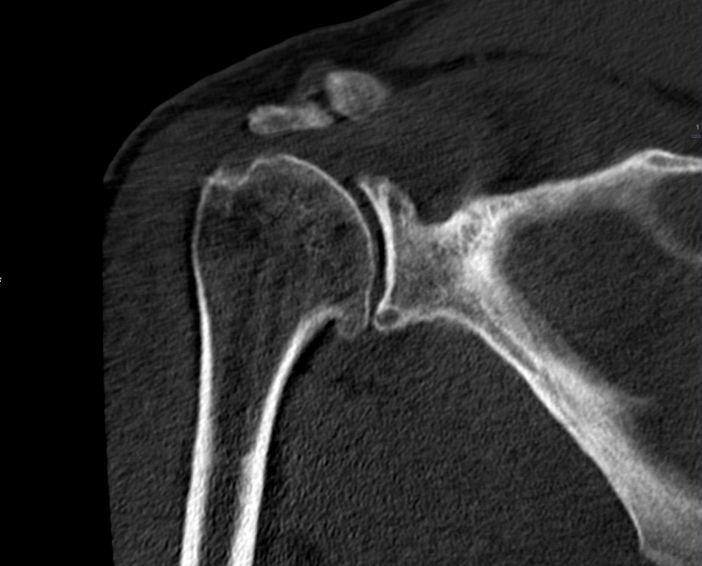 Рентгенівський знімок артрозу плечового суглоба