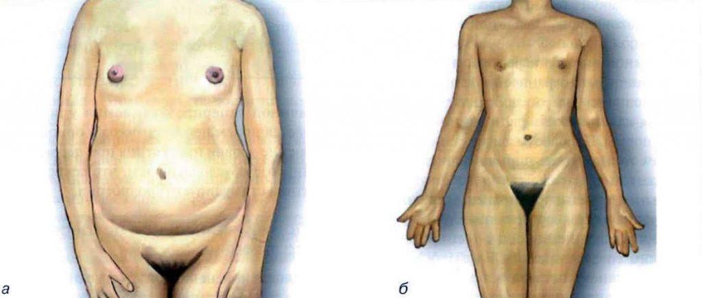 Діагностика і лікування жіночого гіпогонадизму