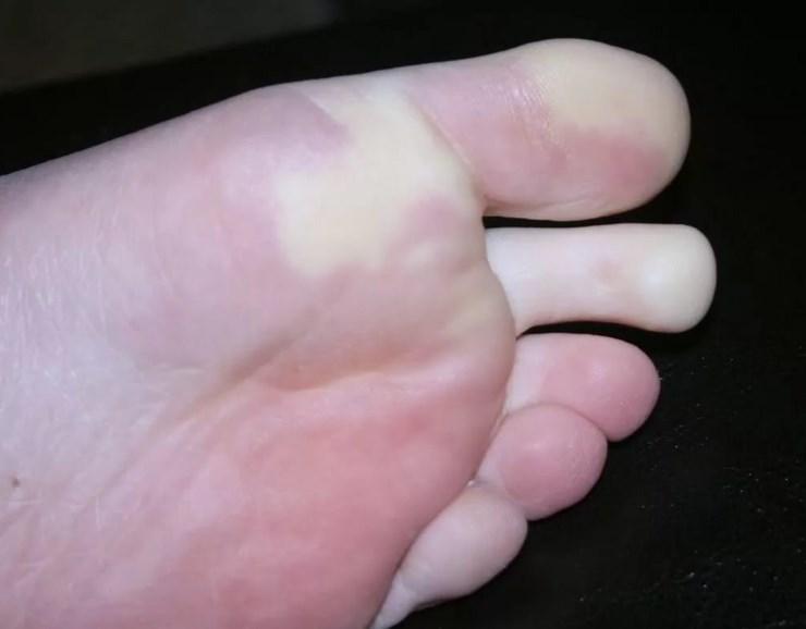 Хвороба рандом Ослера-Вебера (синдром, ангиоматоз)
