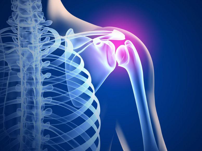 Артроз плечового суглоба