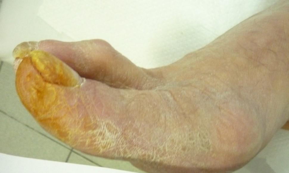 Діагностика та лікування облітеруючого атеросклерозу