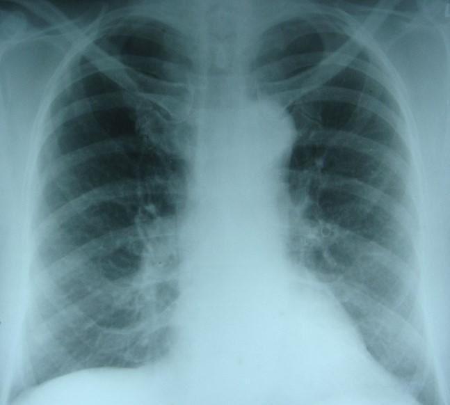 Рентгенівський знімок набряку легень