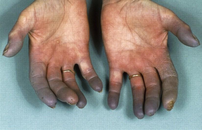 Хвороба рандом Ослера-Вебера - причини, симптоми