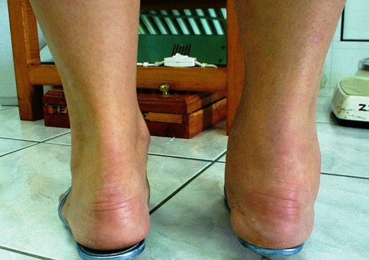 Артрит гомілковостопного суглоба: симптоми та причини