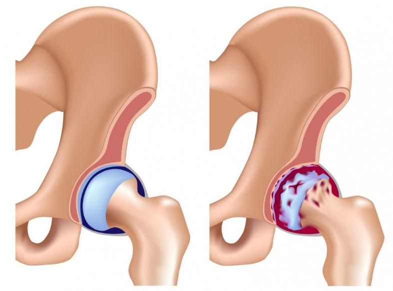 Асептичний некроз головки стегнової кістки - лікування