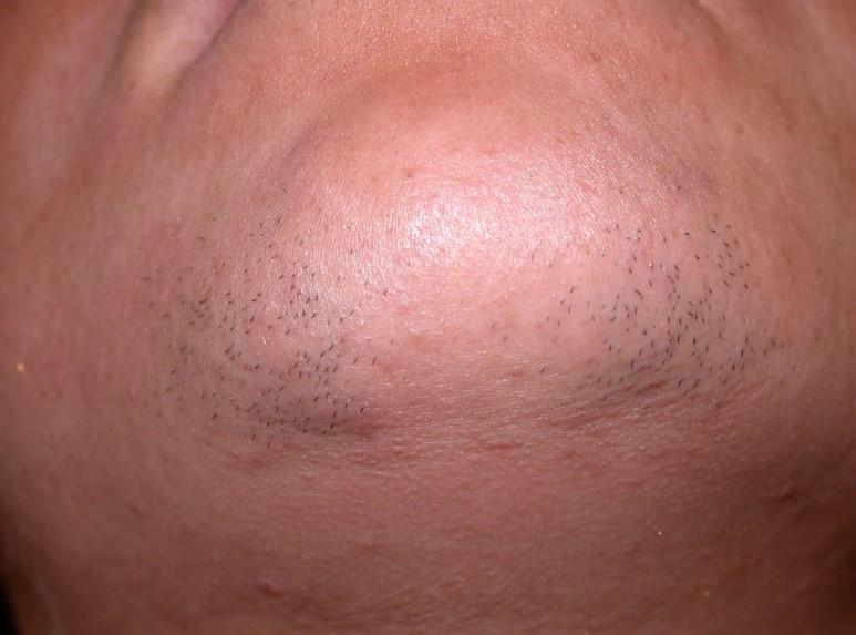 Поява волосся на підборідді у жінок