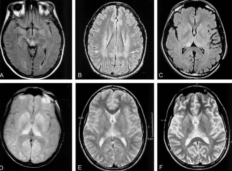 Хвороба Крейтцфельдта-Якоба: симптоми, ознаки