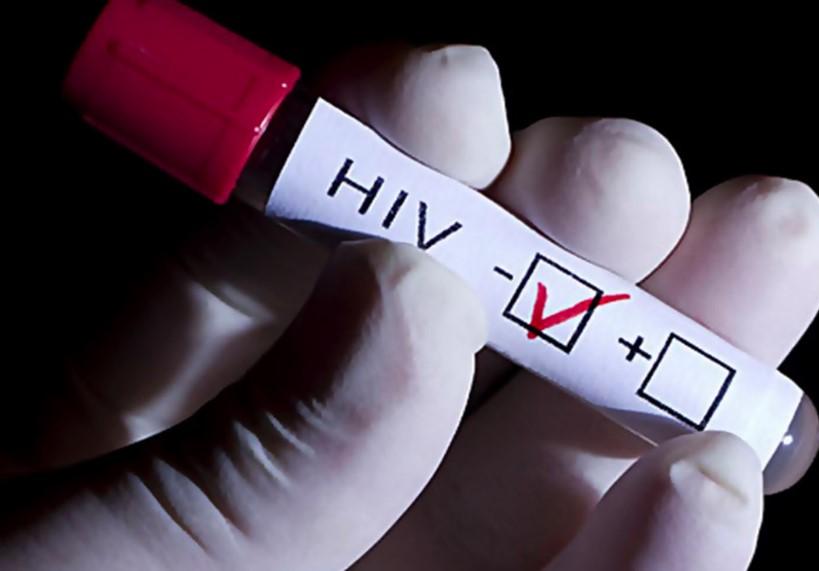 Що таке ВІЛ/СНІД і як з ним живуть