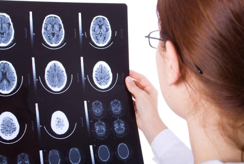 Хвороба Симмондса: ознаки, принципи лікування
