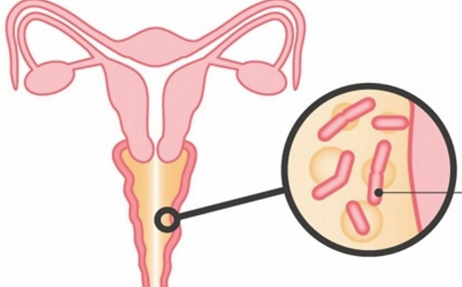 Бактеріальний вагіноз: сучасний погляд на проблему