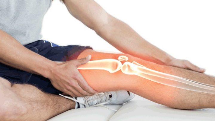 Артрит колінного суглоба