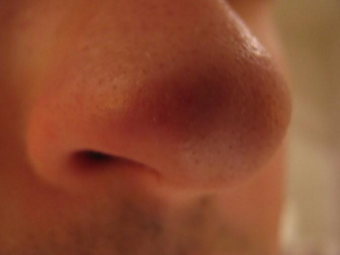 Фурункул в носі: лікування