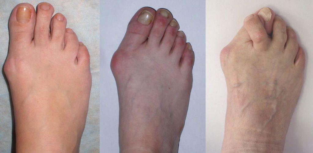 Бурсит великого пальця стопи: симптоми