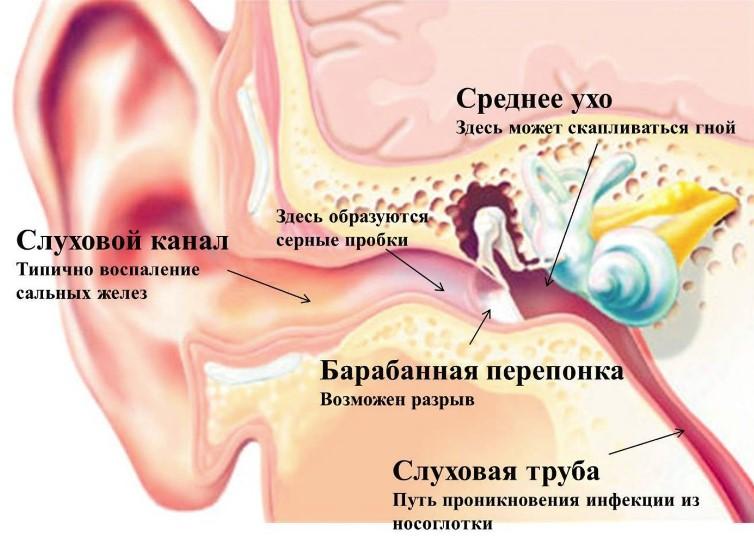 Баротравма вуха