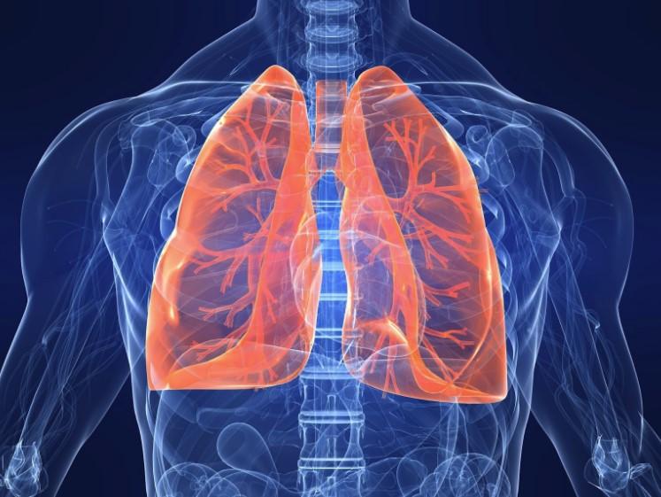 Бериллиоз - лікування хвороби. симптоми