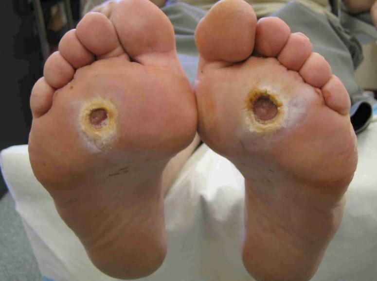Лікування ран при цукровому діабеті