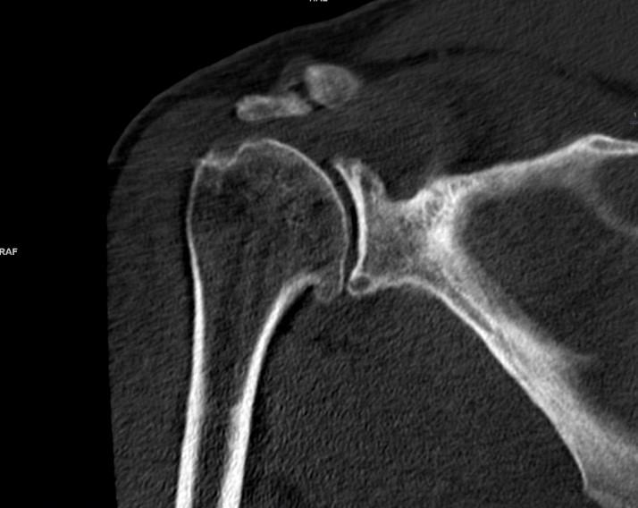 Артрит плечового суглоба: симптоми та причини