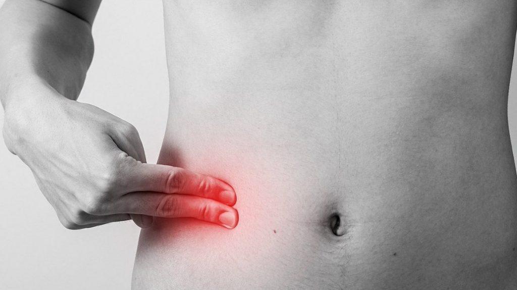 Катаральний апендицит: причини