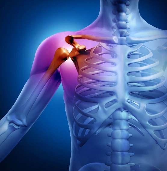 Чому виникає артрит плечового суглоба