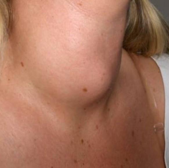 Папілярний рак щитовидної залози: причини