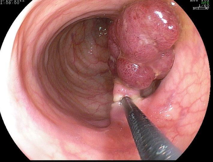 Видалення поліпів шлунка
