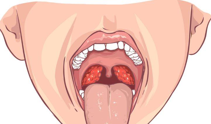 Симптоми ангіни