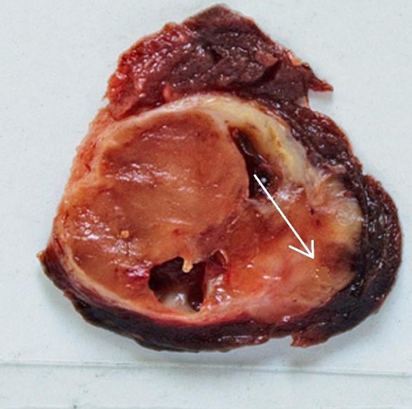Симптоми папілярного виду раку