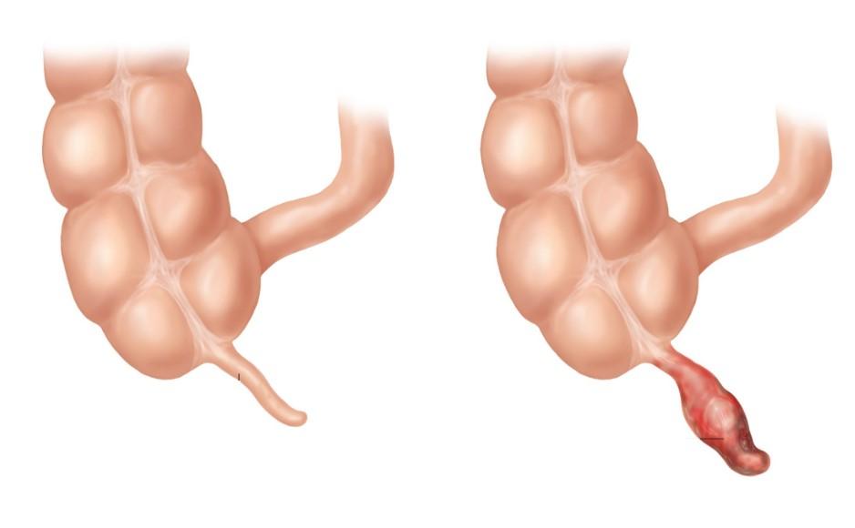 Гострий апендицит - причини, симптоми