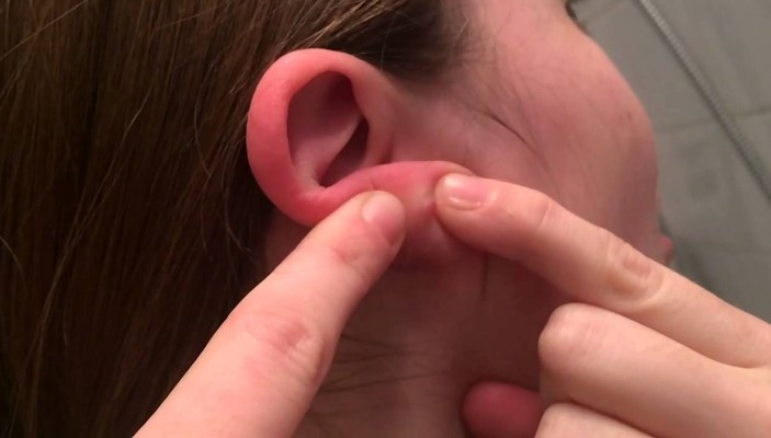 Що робити, якщо захворіло вухо?