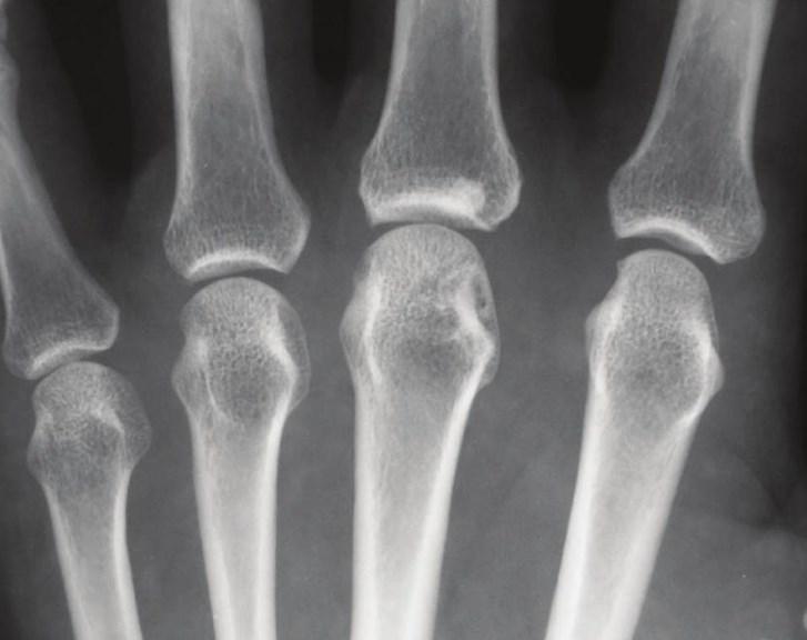 Хвороба Стілла дорослих: особливості клінічного перебігу
