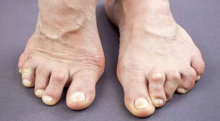 Артрит суглобів стопи: симптоми