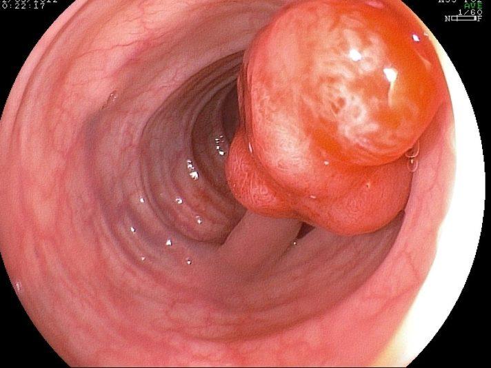 Поліпи шлунково-кишкового тракту